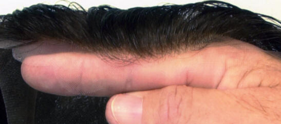 Sustavi Zamjenske Kose Eng Hair Systems Svijet Kose Hr